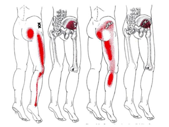 Myofasciale triggerpoints, triggerpoints, chronische klachten, referred pain, uitstraling, afgeleide pijn